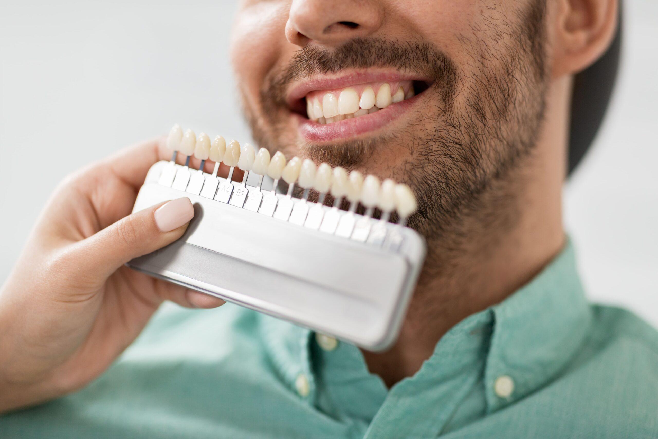 Escala de color de los dientes: cuántos blancos hay