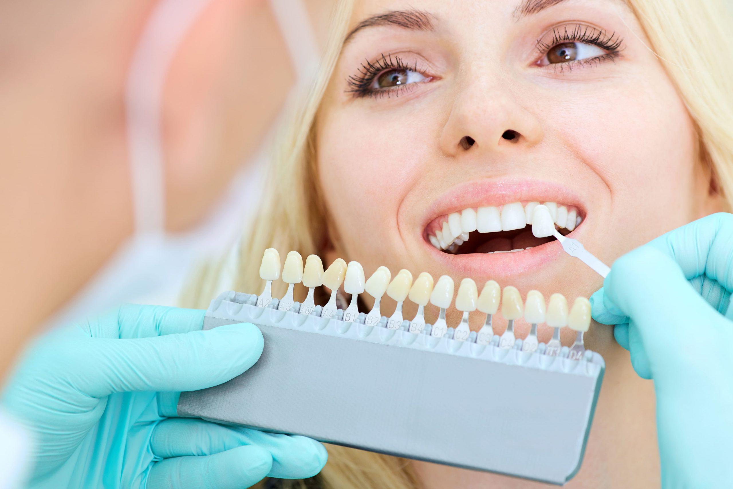 Erosión Dental: Causas y tratamientos