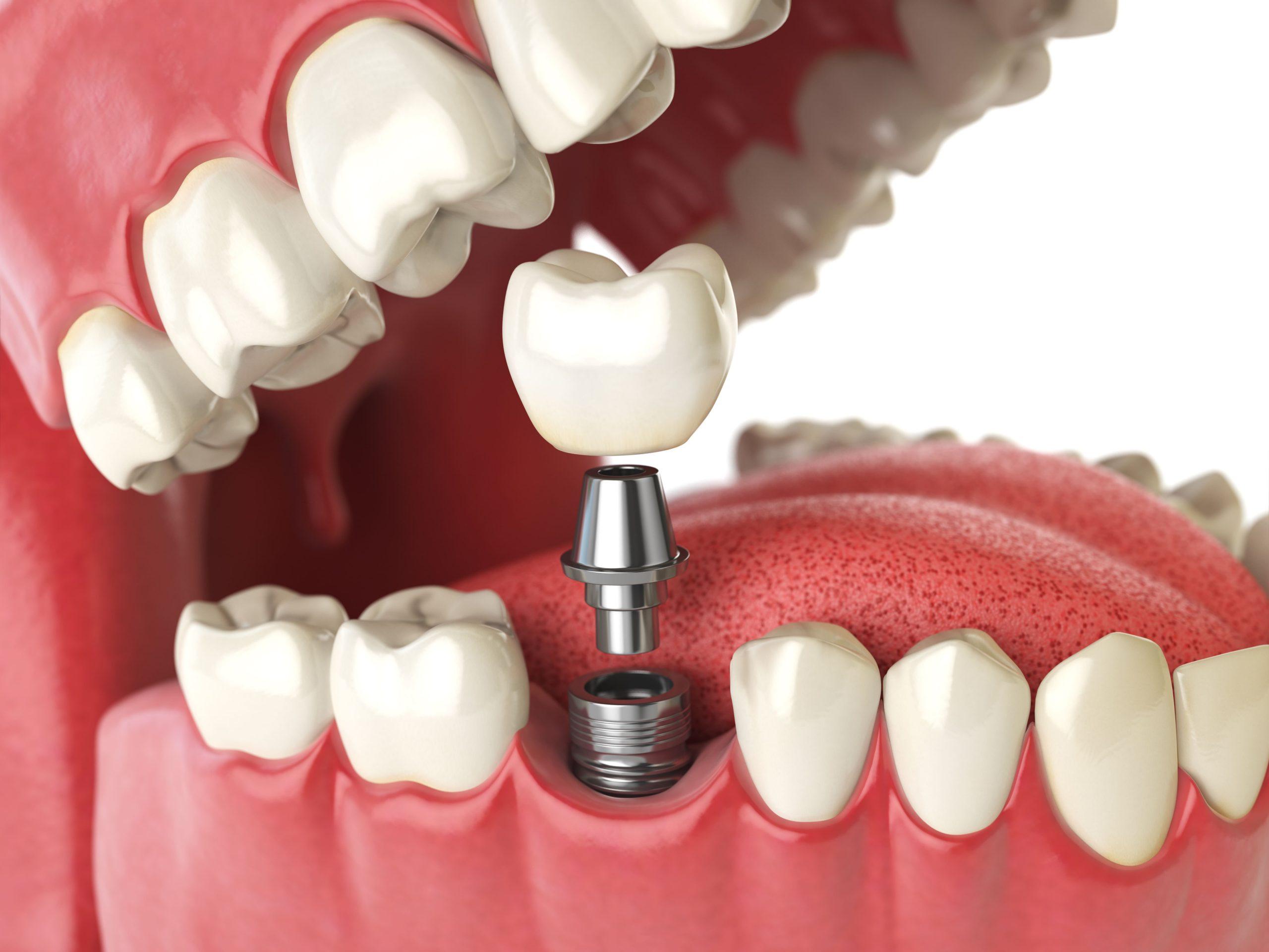 Aditamentos protésicos para implantes ¿Qué son?