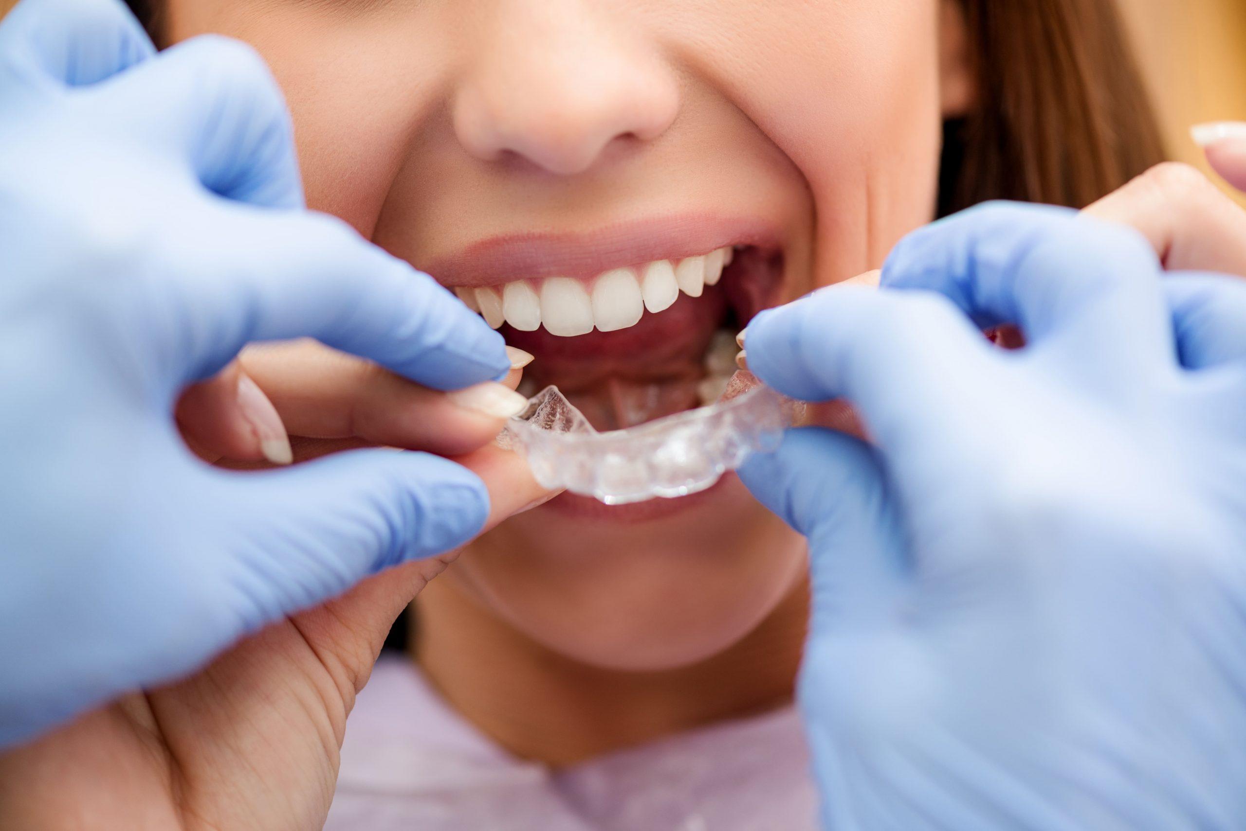 Para qué sirve una férula dental